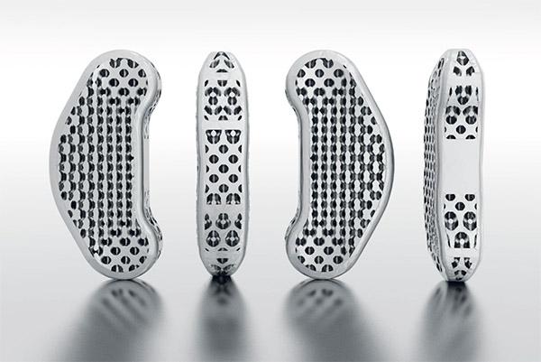 骨科金属3d打印