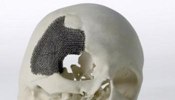 3D打印人体骨骼模型